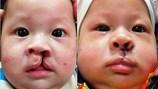 Cứu trẻ sứt môi, hở hàm ếch ngay từ khi mới sinh