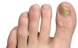 Các liệu pháp tự nhiên tiêu diệt nấm móng chân
