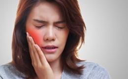 Những cách tự nhiên giúp 'đập tan' cơn đau mọc răng khôn