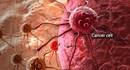 Loại củ chữa nhiều bệnh và ngăn ngừa ung thư ít người biết