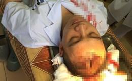 Sở Y tế Hà Nội vào cuộc vụ bác sĩ bị người nhà bệnh nhân đánh bất tỉnh