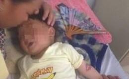 Bé trai 3 tuổi bị bỏng thực quản, dạ dày vì ăn nhầm hóa chất