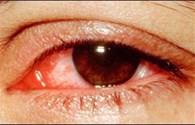 Đau mắt đỏ do virus tưởng nhầm là vì bụi