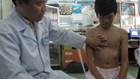Ngày càng nhiều trẻ bị lõm ngực bẩm sinh