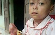 LD1738: Bé gái 8 tuổi đau đớn vì bạo bệnh hành hạ