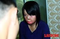 """Cô gái bị chồng thiêu sống gây rúng động 1 năm trước: """"Tôi không hận chồng nhưng khó tha thứ"""""""