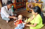 LD16119: Chờ phép màu đến với cháu bé bị đầu to bất thường