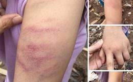 Học sinh lớp 5 bị giáo viên đánh bầm tím tay do làm thiếu bài tập