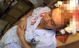 Một bác sĩ phó khoa bị người nhà bệnh nhân nhi đánh trọng thương