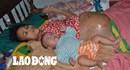 LDS15068: Đau đớn cảnh hai mẹ con mang trong mình khối u ác tính