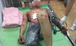 Hải Dương: Hàng chục côn đồ truy sát kinh hoàng trong đêm, 3 người trọng thương