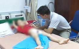 Bố cháu bé bị sùi mào gà: Bài học quá đau xót cho gia đình!