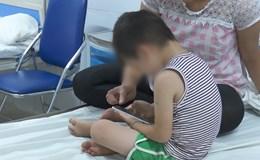 Mẹ cháu bé bị sùi mào gà phẫn nộ khi xem clip y sĩ Hiền dùng kéo cắt tỉa u nhú cho con