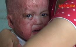 Lời kể đau xót từ gia đình có con bỏng nặng bị thày lang trục lợi, ăn chặn tiền từ thiện