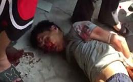 Hà Nội: Người đàn ông nghi ngáo đá cầm dao đâm nhiều người trên phố