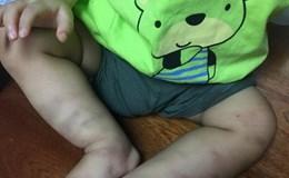 Bé trai 14 tháng tuổi bầm dập thân thể nghi bị bạo hành