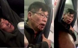 Hành khách bị lôi khỏi máy bay của Mỹ là người gốc Việt