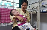 LD1733: Bé trai 17 tháng tuổi mất dần sự sống vì bại não