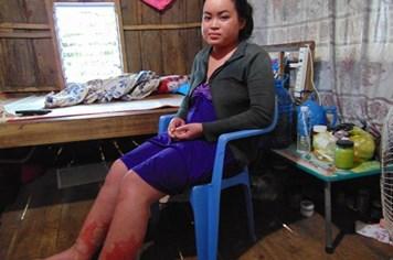 LD1766: Cô gái nhà nghèo mắc bệnh lạ cần được giúp đỡ