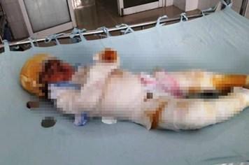 LD1768: Đau xót bé gái 15 tháng tuổi bị bỏng nước sôi