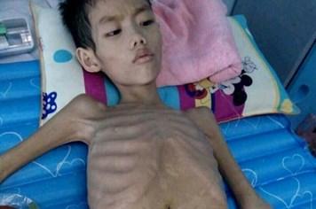 LD17107: Lời kể xót xa của người mẹ nghèo có con nhỏ bị viêm tắc tá tràng phải mổ