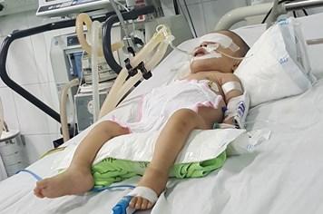 """LD17112: Ứa nước mắt nhìn bé gái 3 tuổi chỉ nặng 7kg, suốt ngày """"thoi thóp"""""""