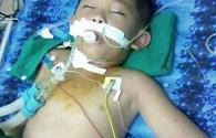 LD17116: Cháu bé 6 tuổi nguy kịch vì bị ong đốt