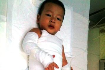 LD17122: Gia đình công nhân có con bị bỏng nặng rơi vào cảnh lao đao