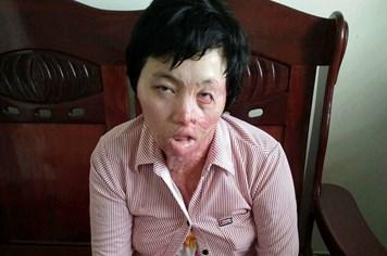 LD17134: Lời khẩn cầu nghẹn đắng của người phụ nữ bị bỏng toàn thân khi cháy xe máy