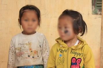 LD1821: Xót xa cảnh hai chị em người H'Mông bị ung thư mắt