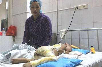LD1827: Bé trai 4 tuổi bị bỏng nặng đang rất cần sự trợ giúp
