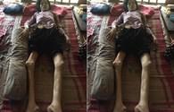 LD1844: Mẹ nằm một chỗ vì tai nạn, 3 con thơ có nguy cơ thất học